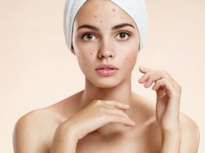 acne skin remedies
